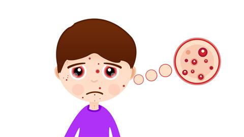 眉心长痘痘是什么原因