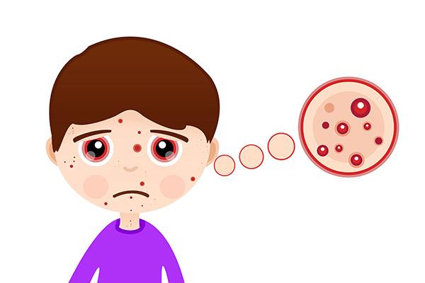 嘴边长痘痘是什么原因 嘴边长痘痘的原因