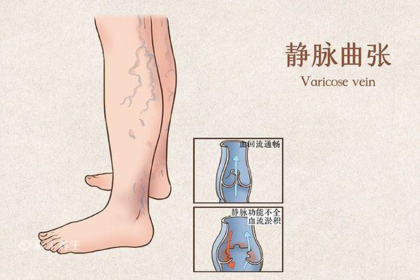 早期小腿静脉曲张图片