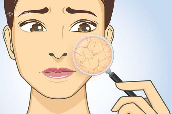 皮肤干燥2.jpg