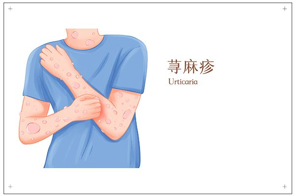 荨麻疹初期症状图片 荨麻疹的早期症状有哪些