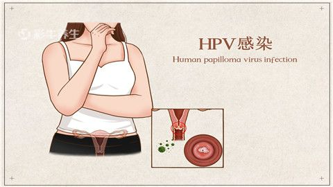 hpv|感染了hpv有哪些症状