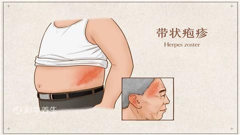 带状疱疹.jpg