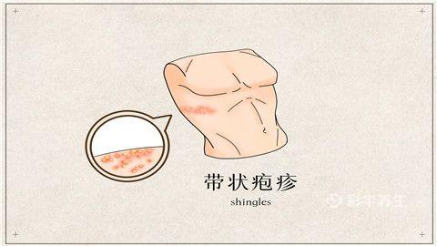 带状疱疹吃什么食品好