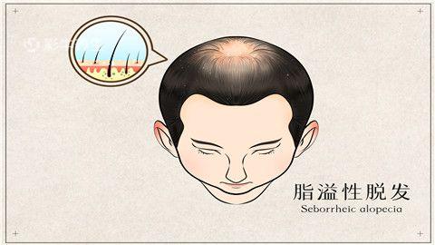 斑秃是什么病的前兆