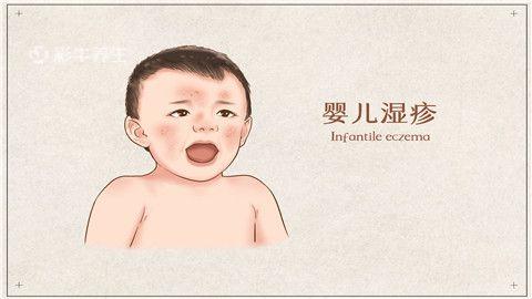 婴儿湿疹.jpg