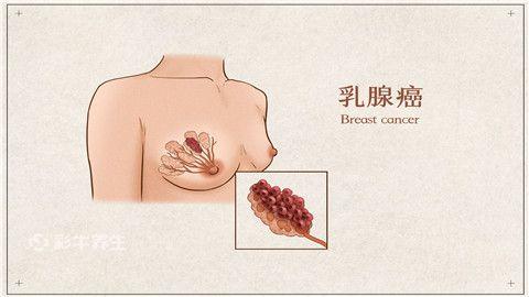 乳腺癌.jpg