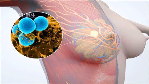 乳腺结节1.jpg