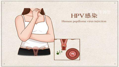 hpv|人头乳瘤病毒早期症状