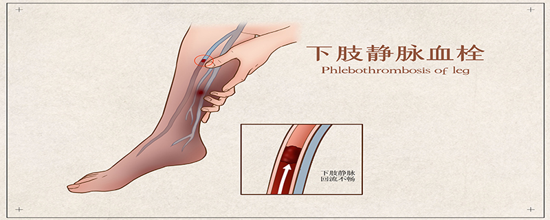 下肢深静脉血栓形成后综合征及其防治