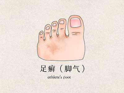 脚气烂脚趾缝痒溃烂怎么治疗 脚气烂脚趾缝痒溃烂用什么药膏