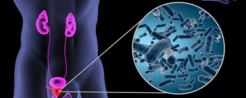 尿路感染出血的原因