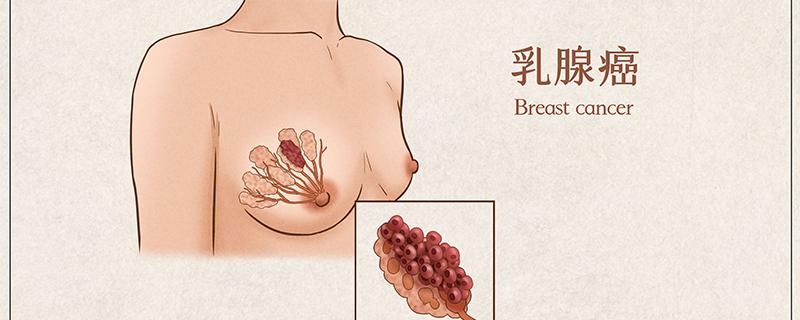赫賽汀能治好乳腺癌嗎